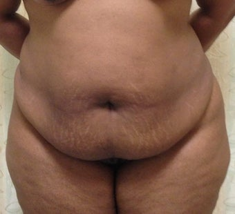 37 Year Old Woman Treated with a Tummy Tuck before 1193215