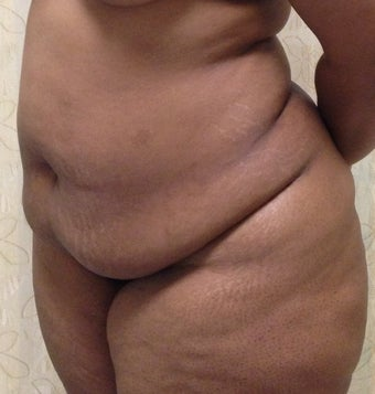 37 Year Old Woman Treated with a Tummy Tuck 1193215