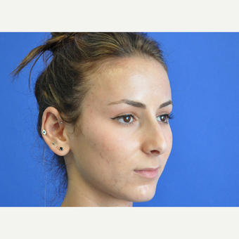 18-24 year old woman treated with Rhinoplasty before 3240053