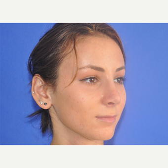 18-24 year old woman treated with Rhinoplasty after 3240053