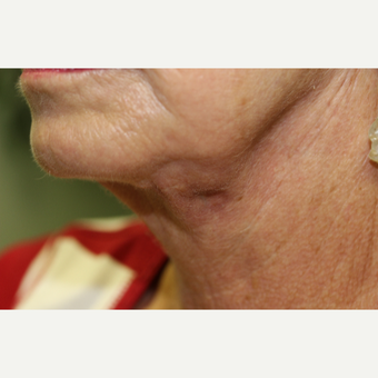 65-74 year old woman treated with Neck Lift after 3837254
