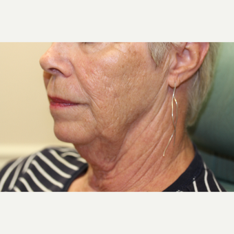 65-74 year old woman treated with Neck Lift before 3837254