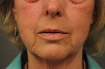 64 Year Old Female with Deep Lip Lines and Asymmetry to Lips before 686374