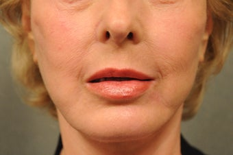 64 Year Old Female with Deep Lip Lines and Asymmetry to Lips after 686374