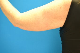 63 Year Old Female Ultherapy of the Arms