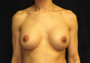 breast augmentation and mastopexy after 391312