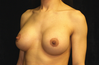 breast augmentation and mastopexy 391312