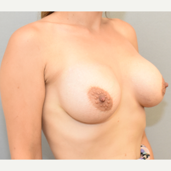 30 year old woman treated with Breast Implants after 3682908