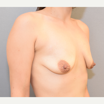30 year old woman treated with Breast Implants before 3682908