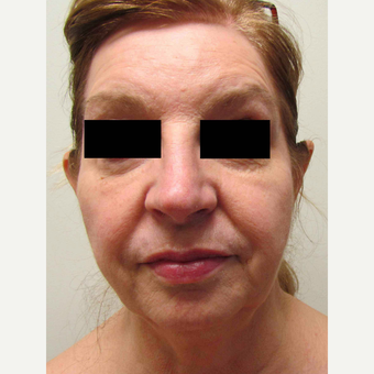 Facelift for this 58 Year Old Woman before 3043329