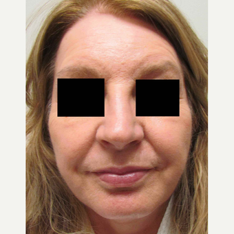 Facelift for this 58 Year Old Woman after 3043329