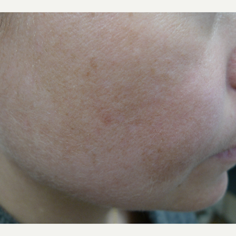 Melasma- improved with lasers, SPF and HQ after 3260196
