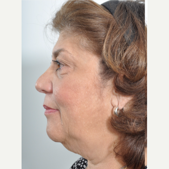 55-64 year old female treated with Facelift and Upper/Lower Blepharoplasty before 3246630