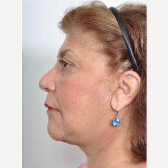 55-64 year old female treated with Facelift and Upper/Lower Blepharoplasty after 3246630