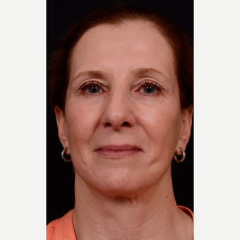 55-64 year old woman treated with Facelift after 3663569