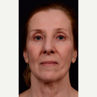 55-64 year old woman treated with Facelift before 3663569