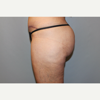45-54 year old woman treated with Liposuction after 3588270