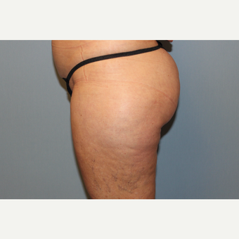 45-54 year old woman treated with Liposuction before 3588270