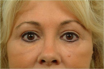 Upper and Lower Blepharoplasty after 386628