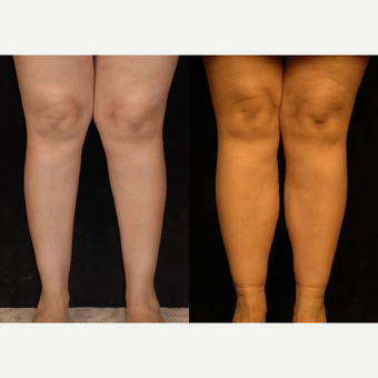 25-34 year old woman treated with Calf Implant before 3659531
