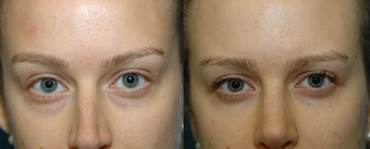 25 year old woman with lower blepharoplasty with fat repositioning before 1291830