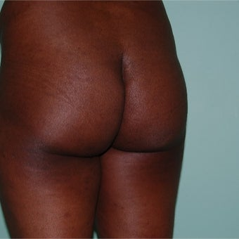 35-44 year old woman treated with Brazilian Butt Lift Transfer of 80 to 900 cc's each side