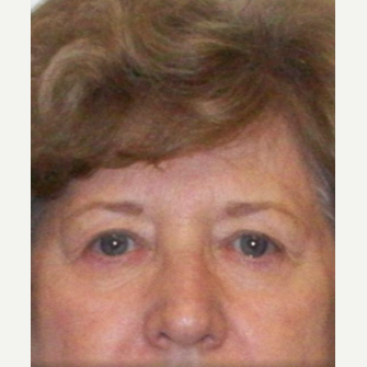 75 and up year old woman treated with Eyelid Surgery before 2098497