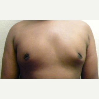17 or under year old young man with Male Breast Reduction after 1970406