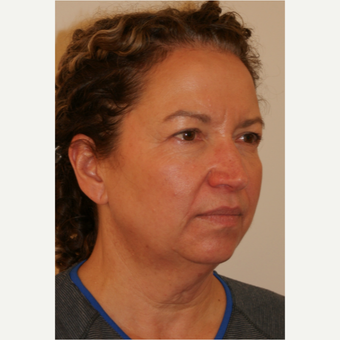 45-54 year old woman treated with Facelift before 3419940