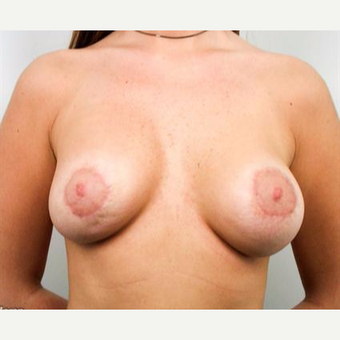 18-24 year old woman treated with Breast Lift with Implants after 3037280