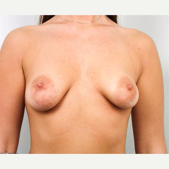 18-24 year old woman treated with Breast Lift with Implants before 3037280