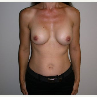 Breast Augmentation after 1690492