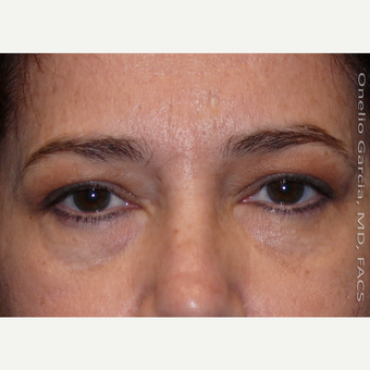 45-54 year old woman treated with Eyelid Surgery before 3008518