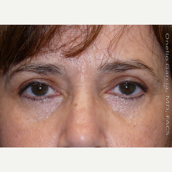 45-54 year old woman treated with Eyelid Surgery after 3008518