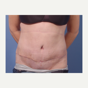 45-54 year old woman treated with Tummy Tuck after 3711674