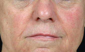 Juvederm Ultra Plus after 296335