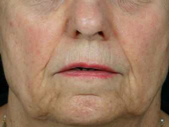 Juvederm Ultra Plus before 296335