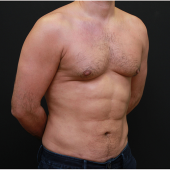 35-44 year old man Six Packs Treatment after 3179429