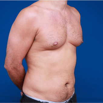 35-44 year old man Six Packs Treatment before 3179429