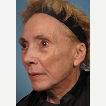 75 and up year old woman treated with Facelift after 3176747