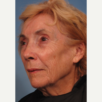 75 and up year old woman treated with Facelift before 3176747