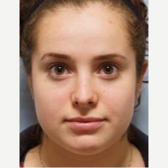 25-34 year old woman treated with Rhinoplasty after 3703428