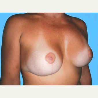 35-44 year old woman treated with Breast Lift with Implants after 3748616