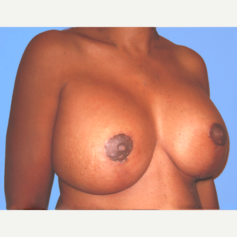 45-54 year old woman treated with Breast Lift with Implants after 3748634