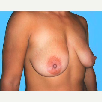 35-44 year old woman treated with Breast Lift with Implants before 3748616