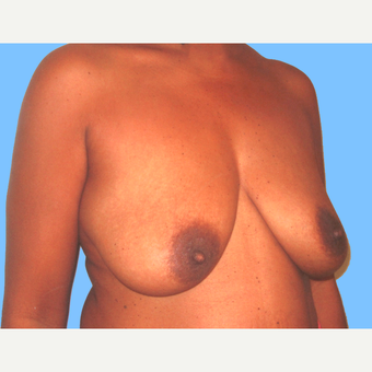 45-54 year old woman treated with Breast Lift with Implants before 3748634