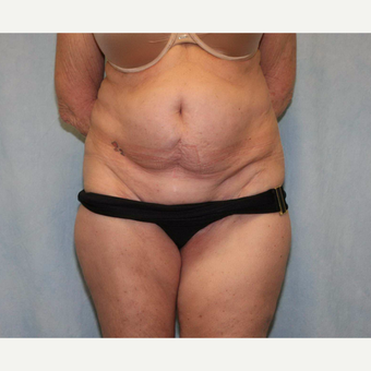 55-64 year old woman treated with Tummy Tuck before 3486948