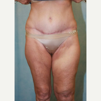 55-64 year old woman treated with Tummy Tuck after 3486948