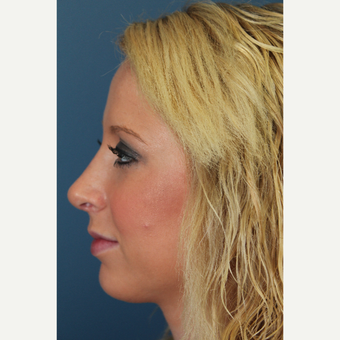 18-24 year old woman treated with Rhinoplasty after 2903059
