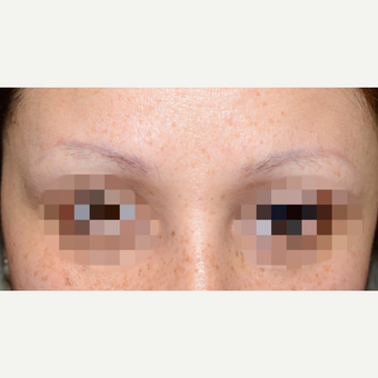 35-44 year old woman treated with Eyebrow Transplant before 3339294
